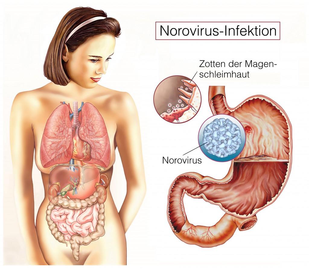 Magen-Darm-Infektion.Norovirus