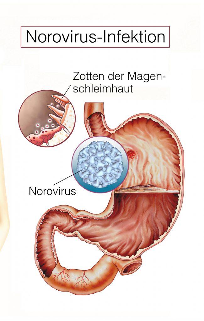 magen darm infekt durchfall