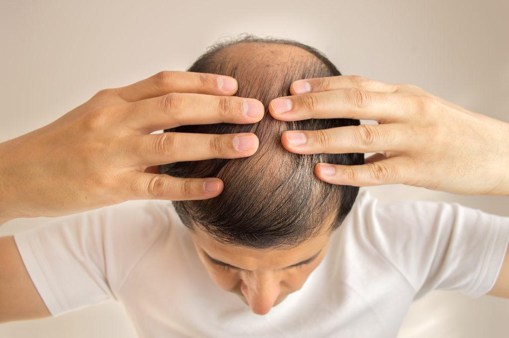 Diffuser Haarausfall hat vielfältige Ursachen, die von Krankheiten über Stress bis hin zu Nebenwirkungen bestimmter Medikamente reichen. (Bild: cunaplus/fotolia.com)
