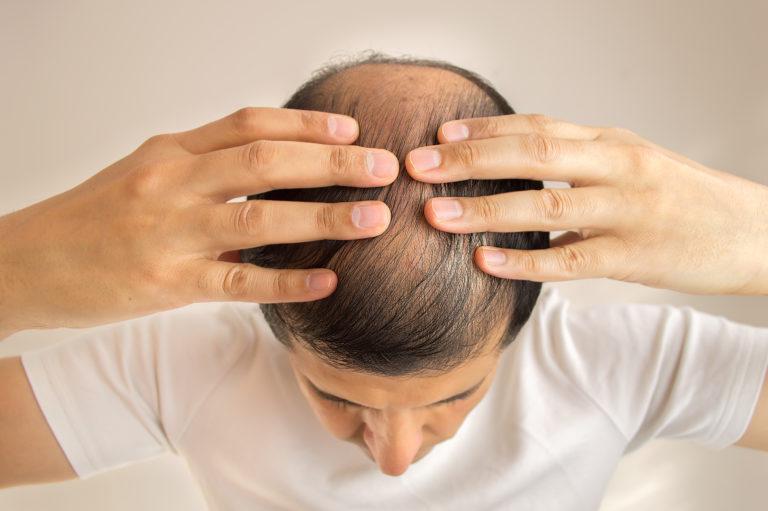 Haarausfall - Ursachen, Therapie und wirksame Hausmittel