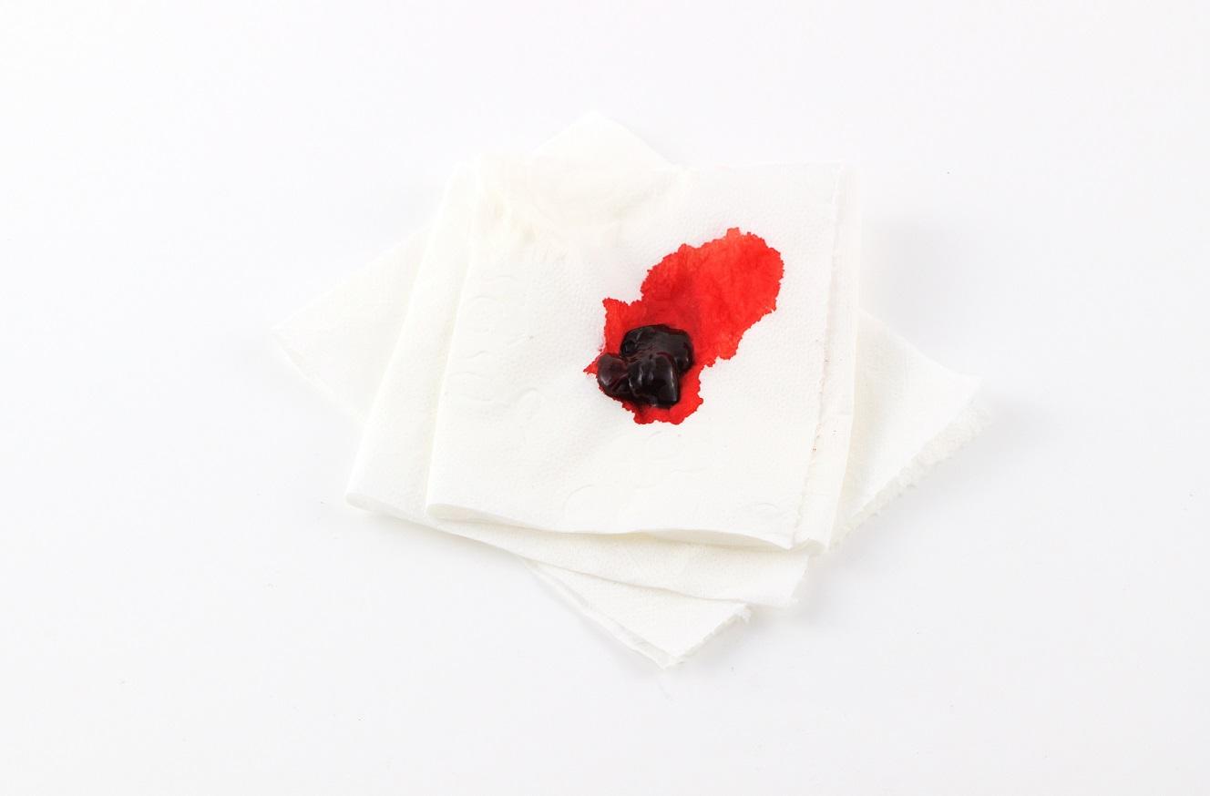 Helles Blut Am Toilettenpapier Schwangerschaft