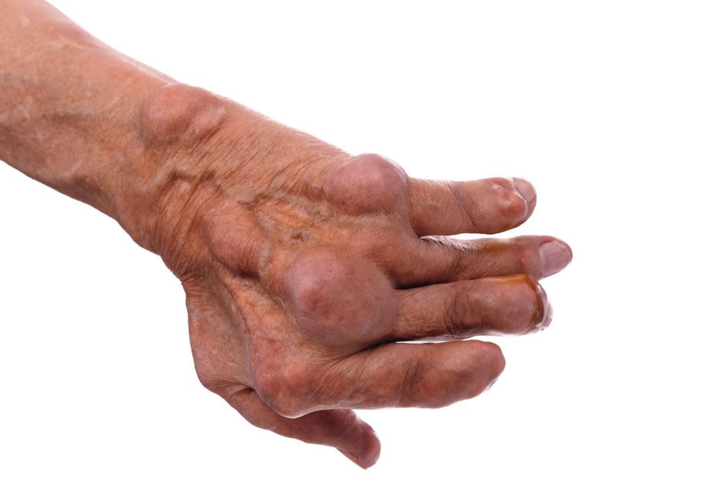 Die Gelenkentzündungen bei der chronischen Polyarthritis können langfristig erhebliche Deformierungen der Gelenke bedingen. (Bild: ivandanru/fotolia.com)