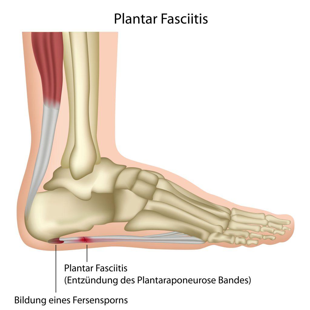 Oft ist ein unterer Fersensporn mit einer Entzündung der Sehenllatte (Plantarfasziitis) unter dem Fuß verbunden. (Bild bilderzwergfotolia.com)