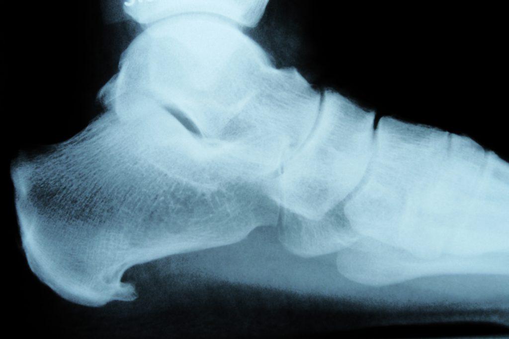 Ein Fersensporn kann sowohl am Sehnenansatz unter dem Fuß (wie auf dem Bild), als auch am oberen Sehnenansatz des Fersenbeins entstehen. (Bild: Whyona/fotolia.com)