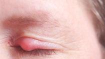 Ein Gerstenkorn ist für die Betroffenen äußerst unangenehm, heilt jedoch in der Regel nach rund einer Woche von alleine wieder ab. (Bild: Heiko Barth/fotolia.com)