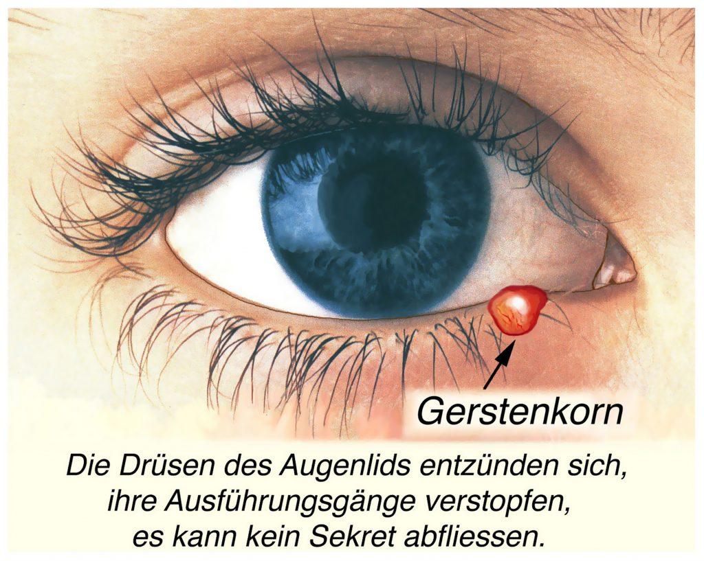 Ursache des Gerstenkorns ist die bakterielle Infektion einer Drüse am Augenlid mit entsprechender Entzündung. (Bild: Henrie/fotolia.com)