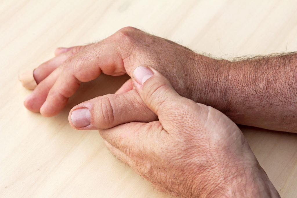 Durch eine Arthrose im Daumensattelgelenk können Schmerzen, Bewegungseinschränkungen und Deformierungen ausgelöst werden. (Bild: Astrid Gast/fotolia.com)