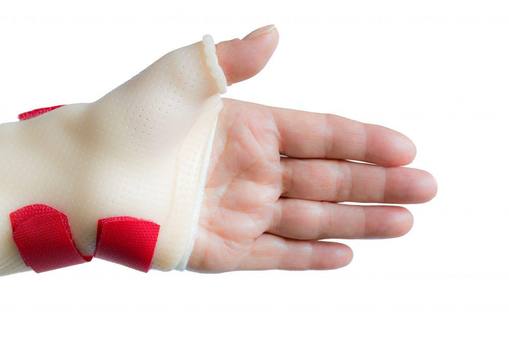 Die Ruhigstellung des Daumens ist bei der Quervain-Krankheit meist unerlässlich. (Bild: TasfotoNL/fotolia.com)