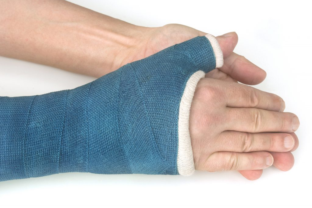 Meist ist im Rahmen der Behandlung von Morbus Preiser einer Ruhigstellung mit einem Gipsverband vorgesehen. (Bild: Fenton/fotolia.com)