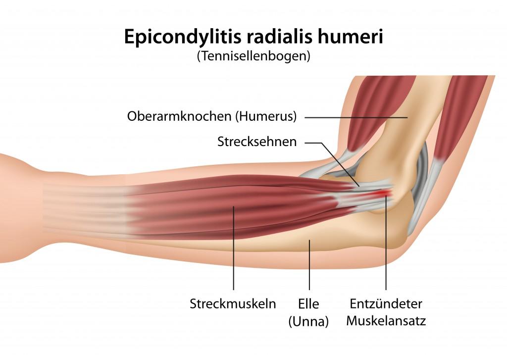 Ellenbogenschmerzen