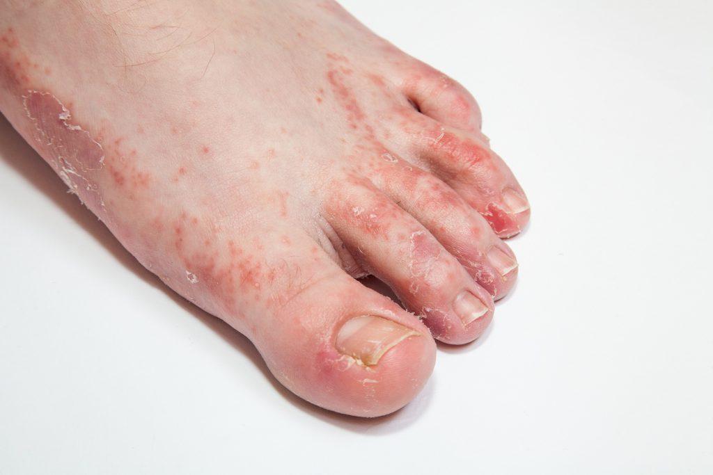 Schweißfüße - Ursachen und wirksame Behandlung