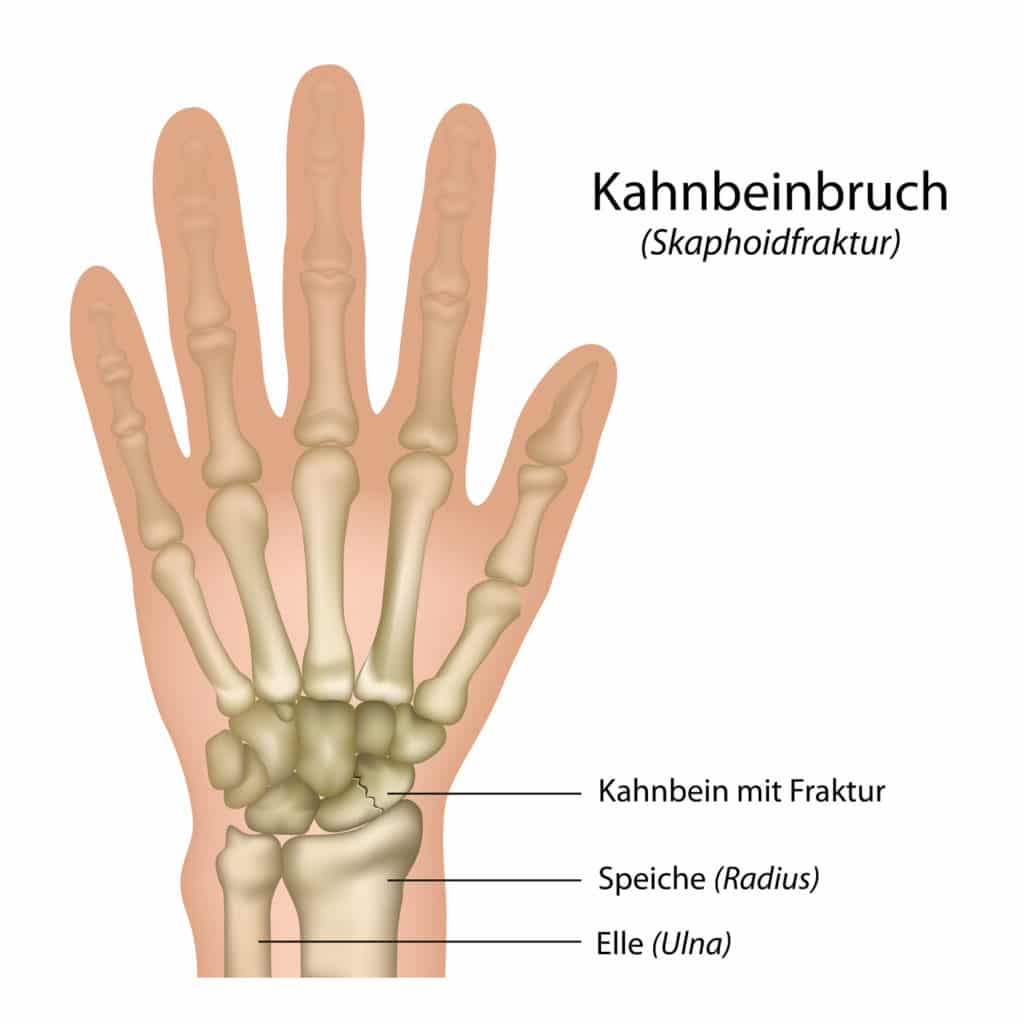 Schwellungen und Knoten an den Händen