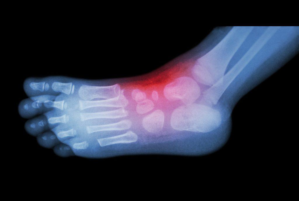 Bei einer vorliegenden Arthritis kann die Entzündung zu Schwellungen und einem erhöhten Druck auf den Tarsaltunnel führen, was eine Kompression des Schienbeinnervs verursacht. (Bild: stockdevil/fotolia.com)