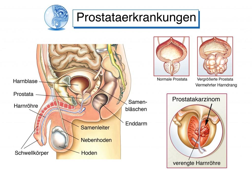 Prostataerkrankungen können für Blut im Urin verantwortlich sein.
