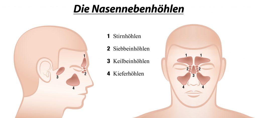 Nasennebenhöhlenentzündung - Symptome, Ursachen und wirksame Hausmittel