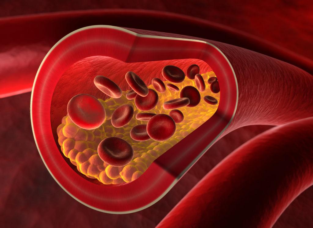 Arterienverkalkung ist eine Hauptursache für einen Herzinfarkt.