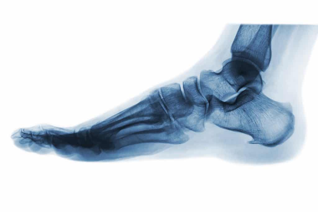 Fußschmerzen unterm Knöchel außen, bzw. Fußrand außen