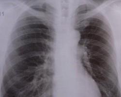 Asthma-bronchiale