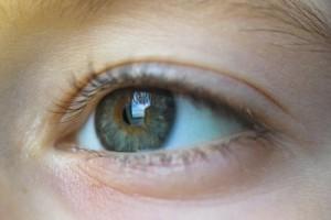 Hornhautentzündung-Auge