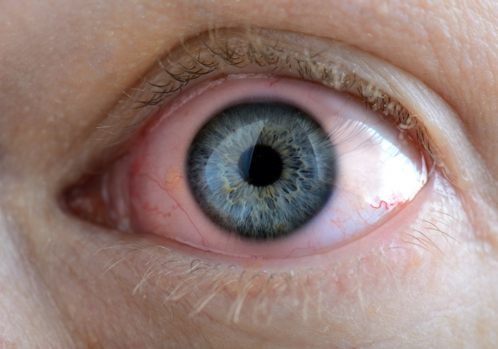 A sore eye with an infection