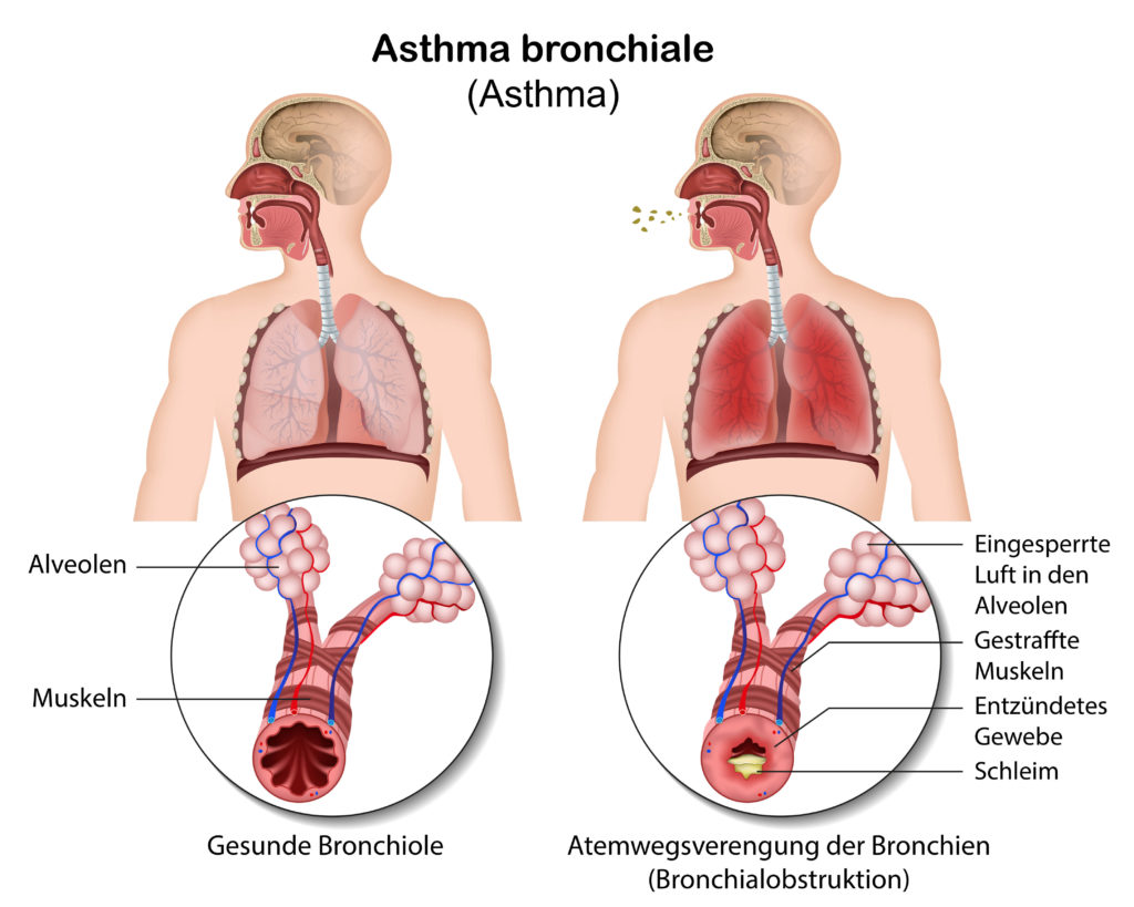 Wie Asthma ensteht