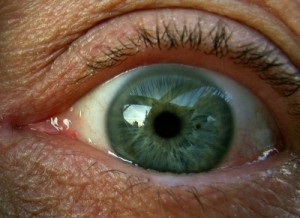 Augenlid-Entzündung