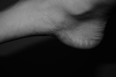 verknoecherter ansatz der plantarfaszie