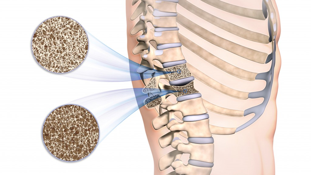 Osteoporose im Rücken. (Bild: Sagittaria/fotolia)