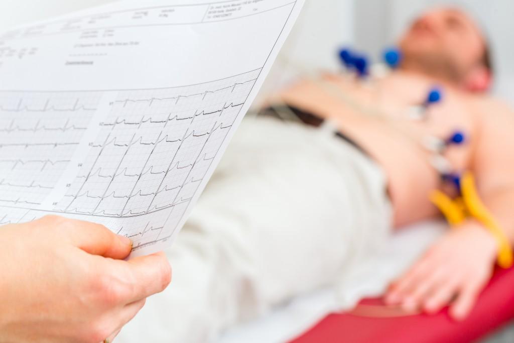 Ein EKG gibt Aufschluss über den Herz-Rhythmus.  (Bild: Kzenon - fotolia)
