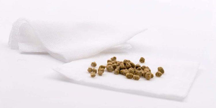 Entfernte Gallensteine liegen auf einem Stück Verbandsstoff.
