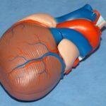 Herzbeutelentzündung