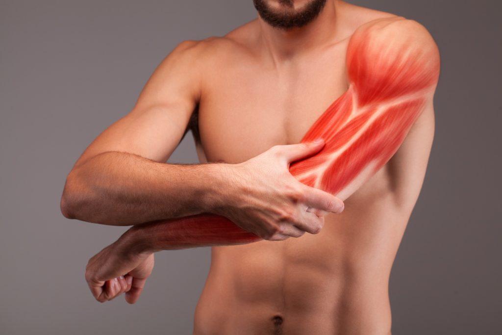 Oberarmschmerzen - Schmerzen am Oberarm