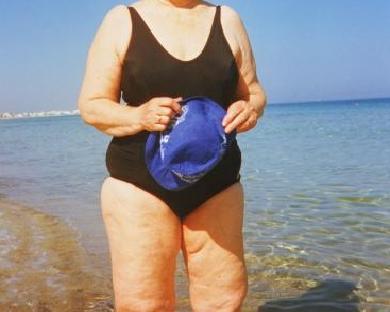 fettablagerungen in den beinen