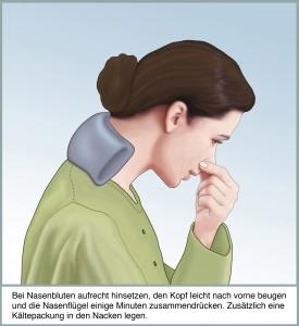 Bei Nasenbluten aufrecht hinsetzen, den Kopf leicht nach vorne beugen und die Nasenfluegel einige Minuten zusammendruecken. Zusaetzlich eine Kaeltepackung in den Nacken legen.