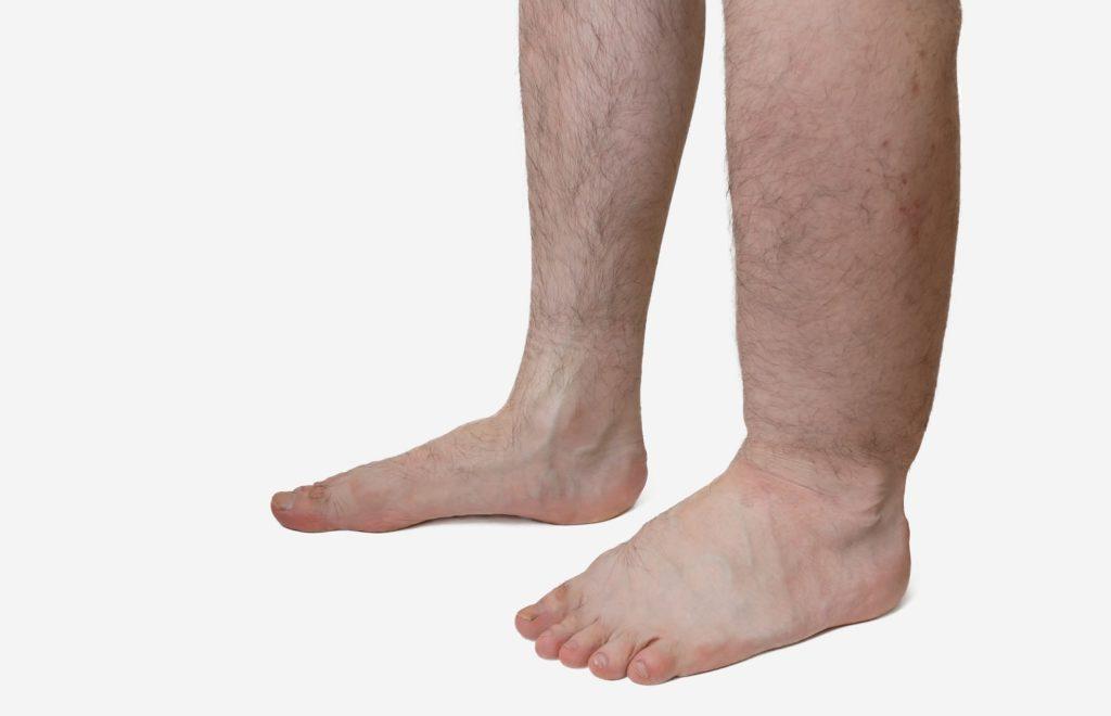 Geschwollene Füße: Ursachen und Behandlung