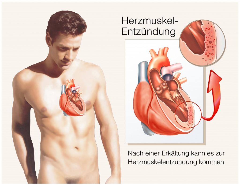 Möglich ist aber auch eine Herzmuskelentzündung. Vor allem dann, wenn Kreislaufprobleme hinzu kommen. Im Zweifel immer einen Arzt konsultieren.