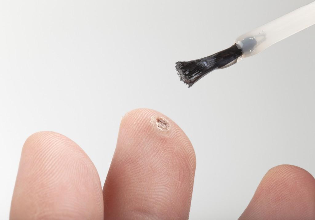 Behandlung einer Warze am Finger