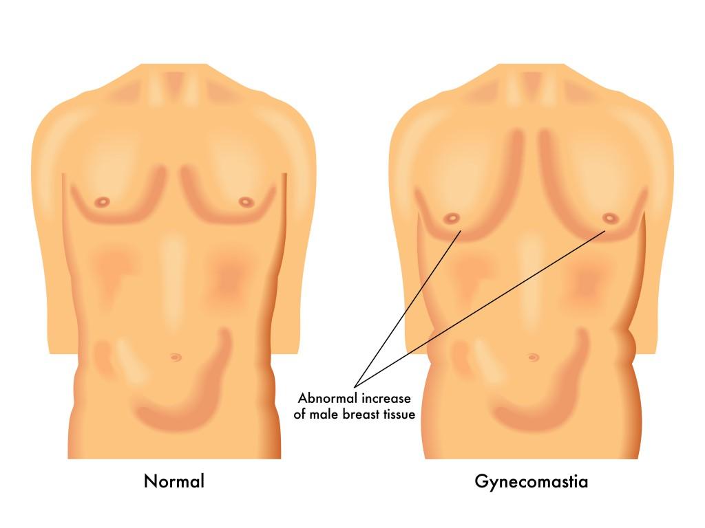 Brustwachstum bei Männern. Bild: rob3000 - fotolia