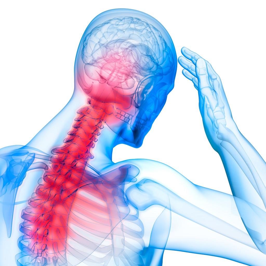 Schmerzlokalisation beim akuten HWS-Syndrom. Bild: psdesign1 - fotolia