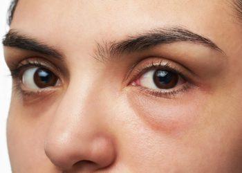Ringe unter den Augen werden oft mit Schlafmangel und Erschöpfung in Verbindung gebracht. Doch die Verfärbungen der Haut können auch andere Ursachen wie z.B. eine Allergie oder Infektion haben. (Bild: PixieMe/fotolia.com)