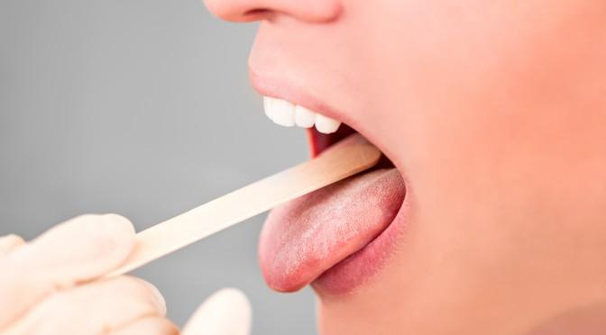 Zungenbelag Zunge Belegt