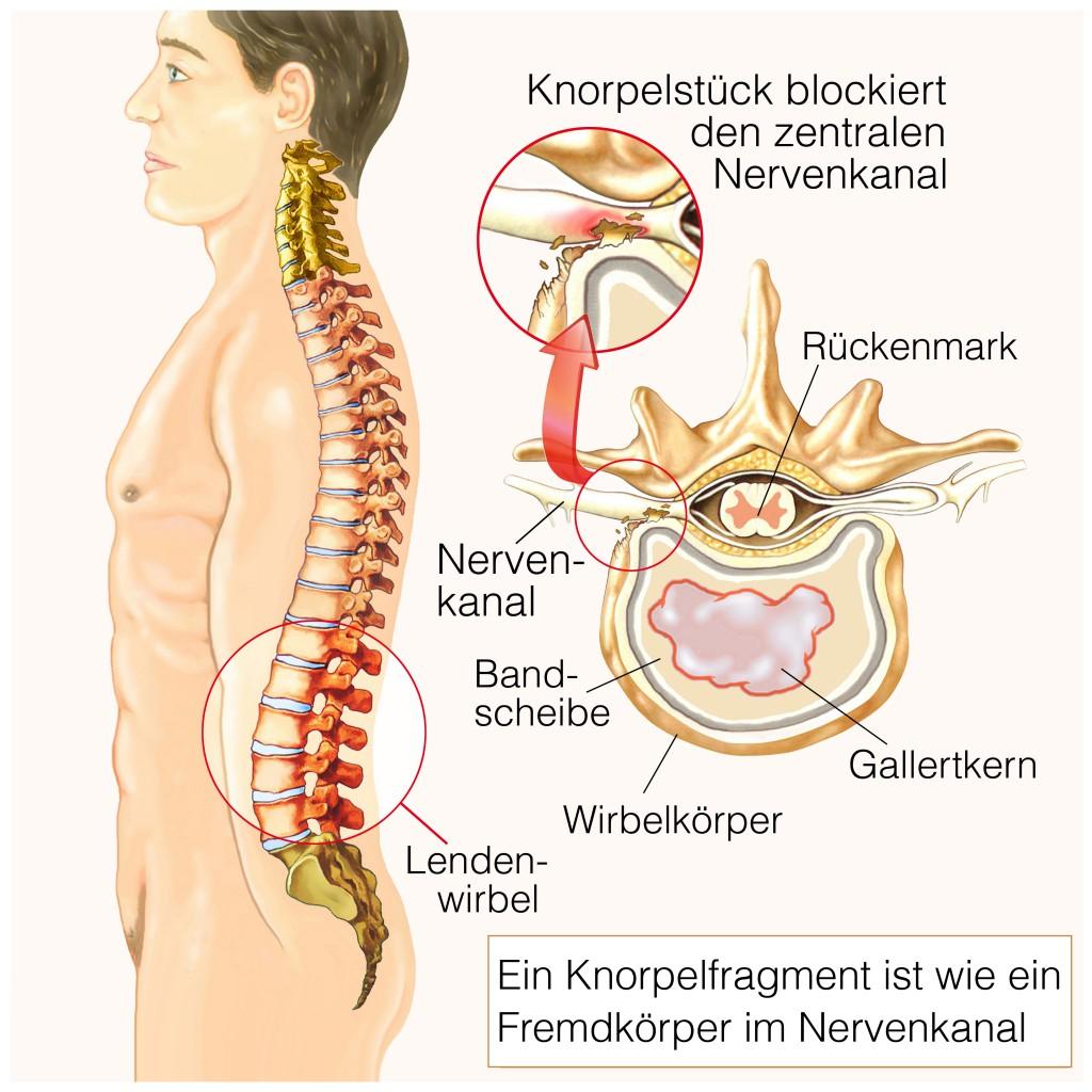 Schmerzen durch Blockierungen der Nervenbahnen.