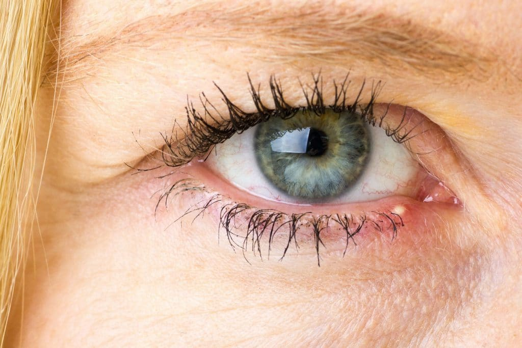 Juckende Augen Augenjucken Ursachen Behandlung Und Hausmittel