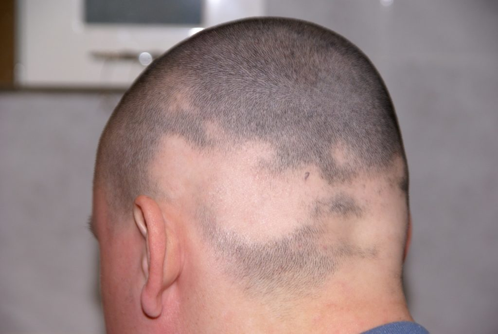 Kreisrunder Haarausfall kann an mehreren Stellen des Kopfes gleichzeitig auftreten. (Bild: Tomy/fotolia.com)