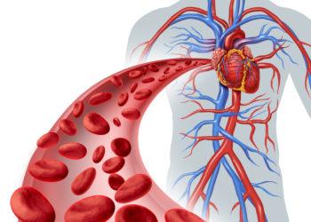Herzschmerzen können aber müssen nicht mit dem Herzen zusammenhängen. Oftmals verbergen sich auch muskuläre Verspannungen dahinter. (Bild: freshidea/fotolia)