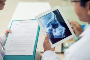 Close-up of doctors examining skull x-ray