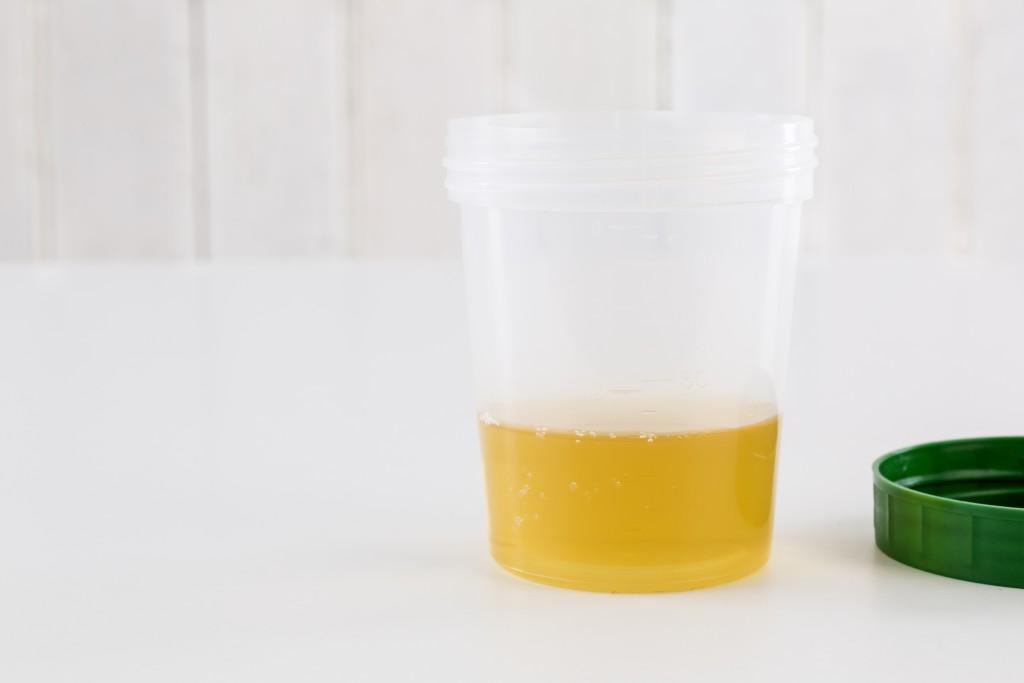 Urinbecher für eine Urinuntersuchung