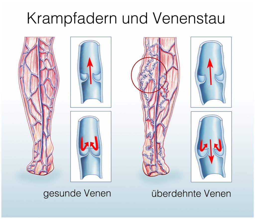 Ein Schaubild vergleicht gesunde Venen mit überdehnten Venen.