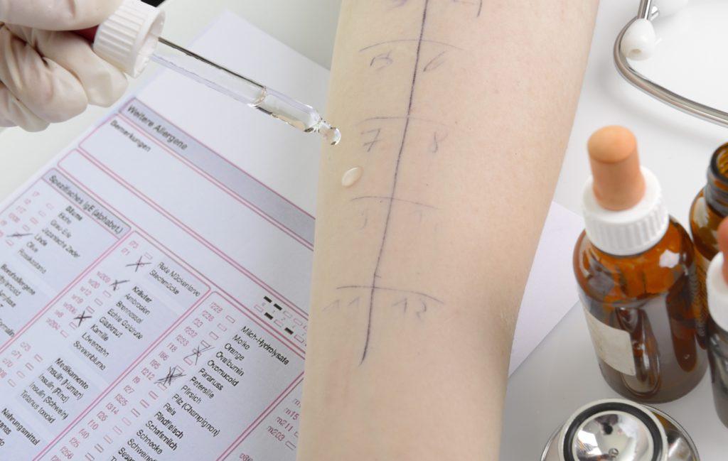 Durch einen Pricktest kann der Hautarzt erkennen, ob eine Allergie vorliegt. (Bild: Gerhard Seybert/fotolia.com)