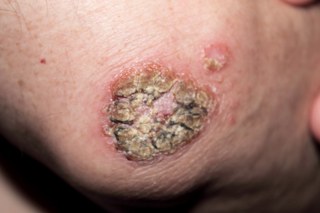 So kann Hautkrebs aussehen. Bei auffälligen Hautveränderungen immer zum Arzt gehen!